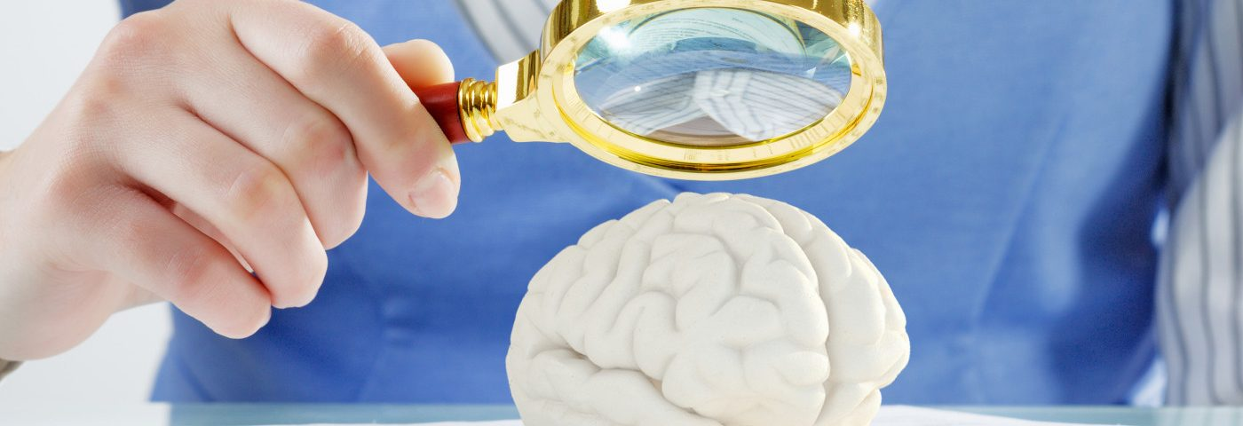 Cerebellum Dysfunction May Contribute to Rett Motor Problems