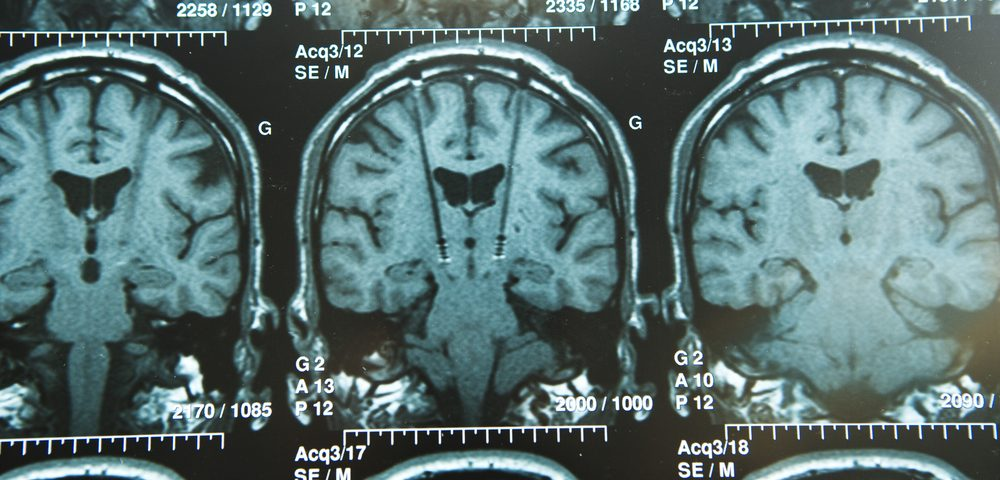 Iron Deposits in Brain May Contribute to Dystonia in Rett Patients
