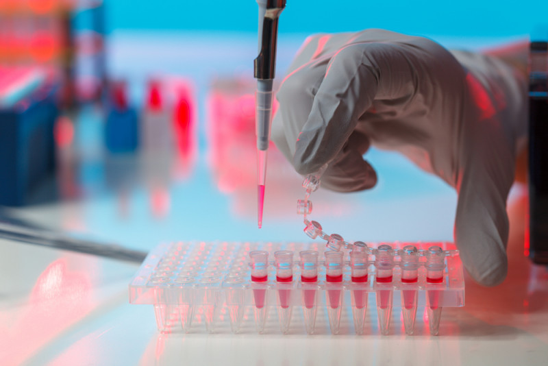 Rett syndrome research | Rett Syndrome News | scientist working in a lab