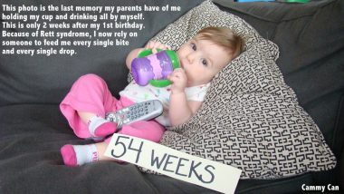 Rett Syndrome Awareness Month / Rett Syndrome News / Photo of Cammy at 54 weeks old lying on a pillow and holding her bottle.